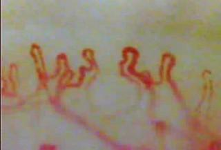毛細血管スコープ「血管美人」で撮影した毛細血管画像